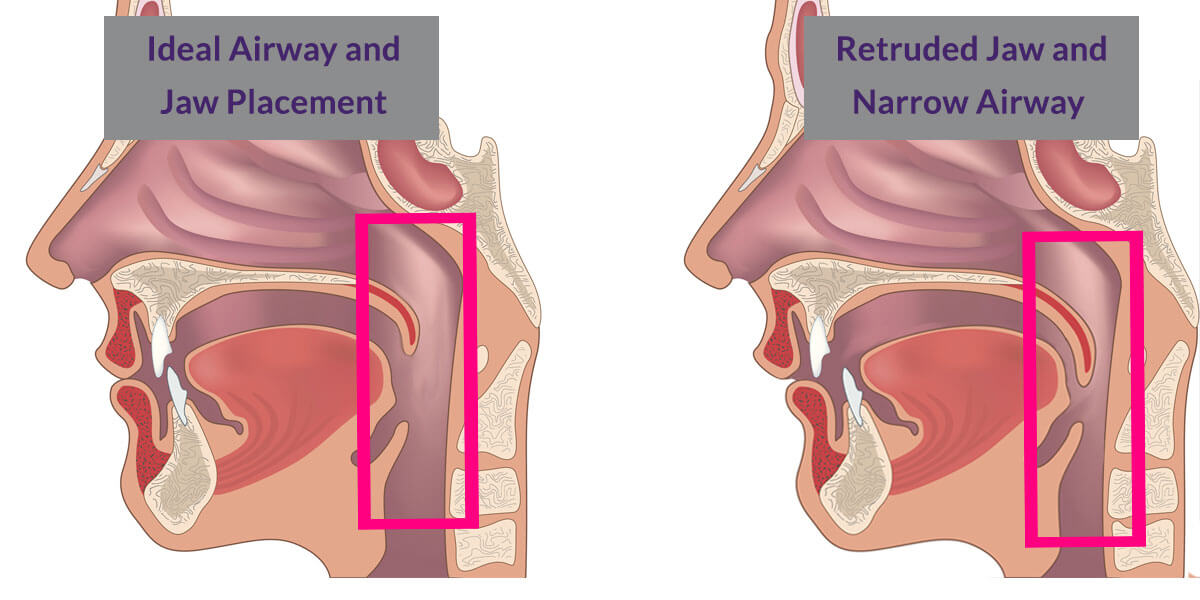 Airway Orthodontics | Yarmosky Pediatric Dentistry